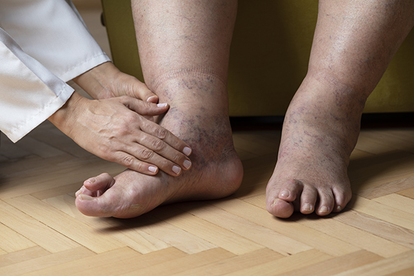 Diabetic Foot Ulcer Foot And Ankle Health Centers